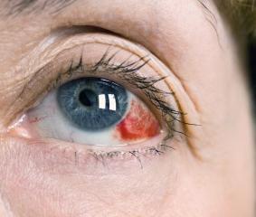 Mit jelezhet a bevérzett szem? - Egészségtüköikvahid.hu