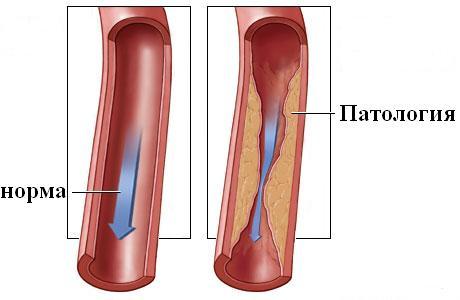 no-shpa magas vérnyomás esetén magas vérnyomás fogyatékosság 2 fokos csoportja