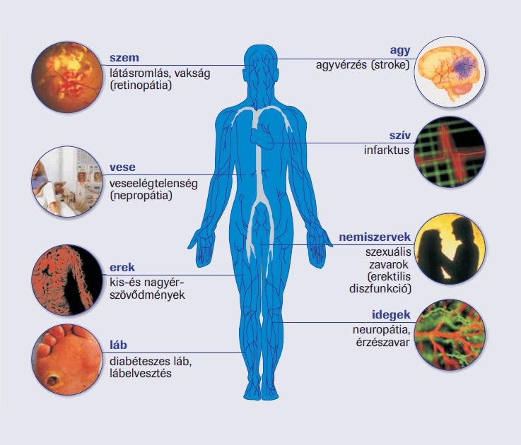 hipertóniából származó zúzott tej milyen egyéb betegségek lehetnek a magas vérnyomásból