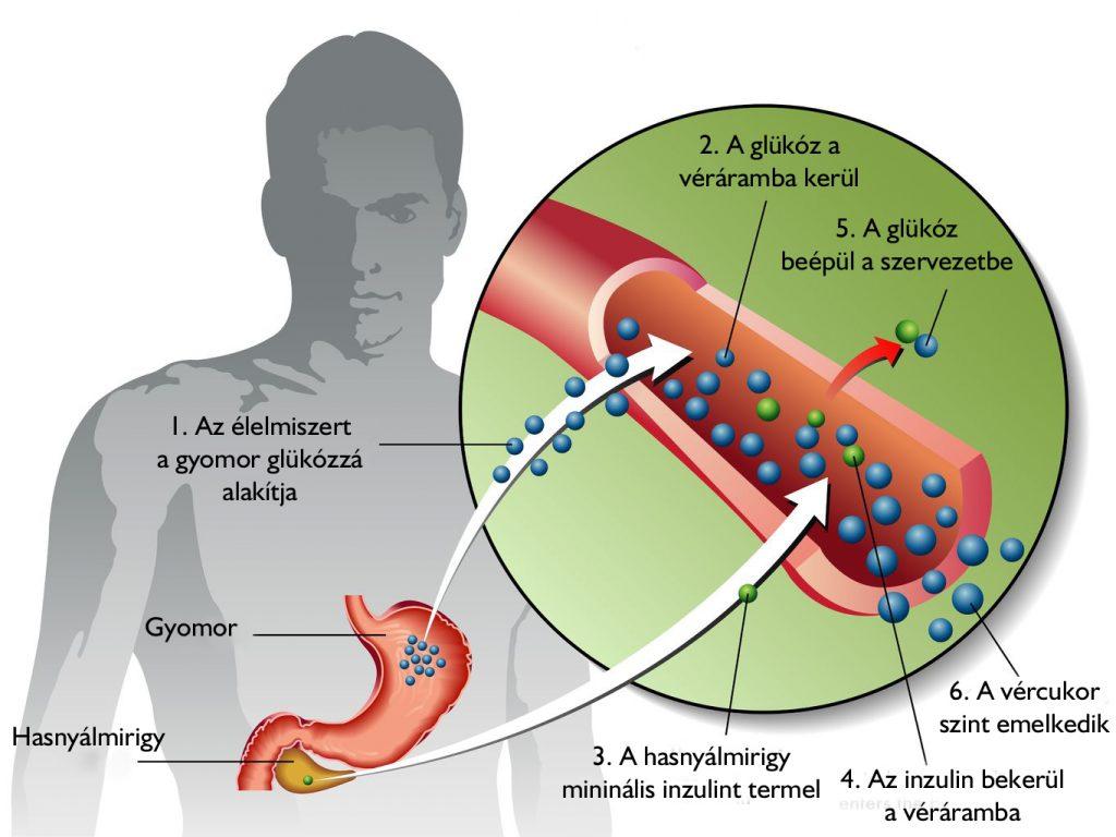 menü a 2-es típusú cukorbetegség és a magas vérnyomás menüjéhez