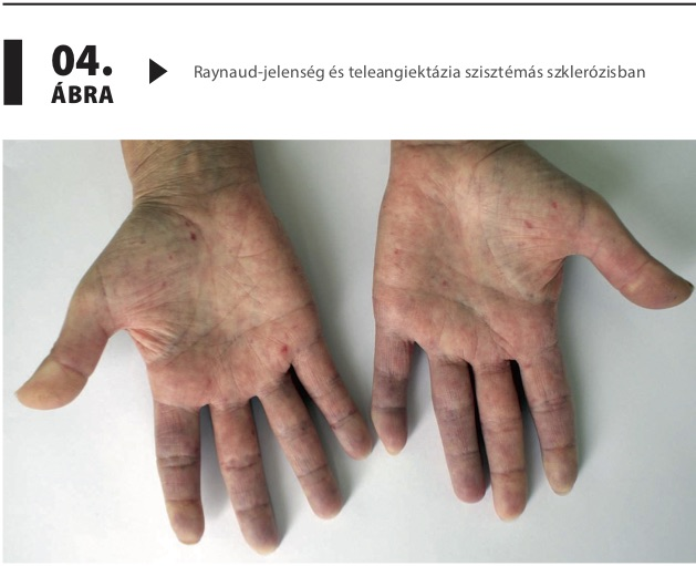 A pulmonalis Doppler-jelek értékelése szisztémás szklerózisban (SSc) szenvedő betegeknél