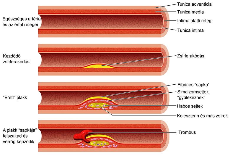 a nephrogén magas vérnyomás az