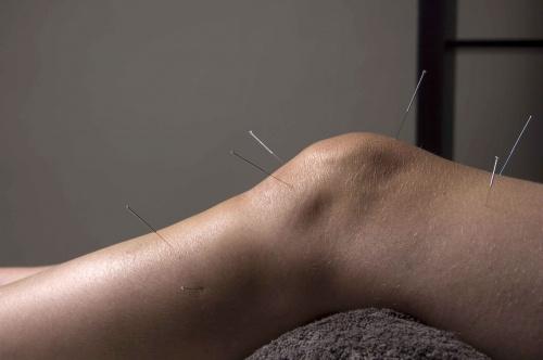 Csökkenti-e az akupunktúra a vérnyomást?