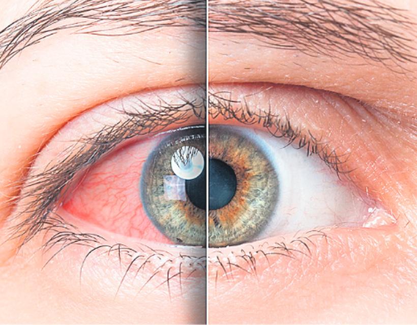 a szemek magas vérnyomásban fájnak