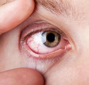 erek a magas vérnyomás szemében magas vérnyomás adrenalin