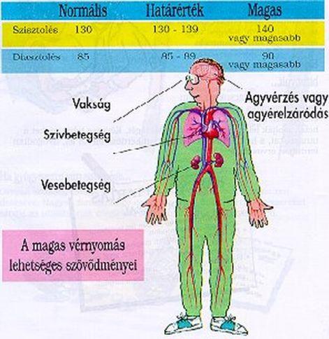 hipertónia