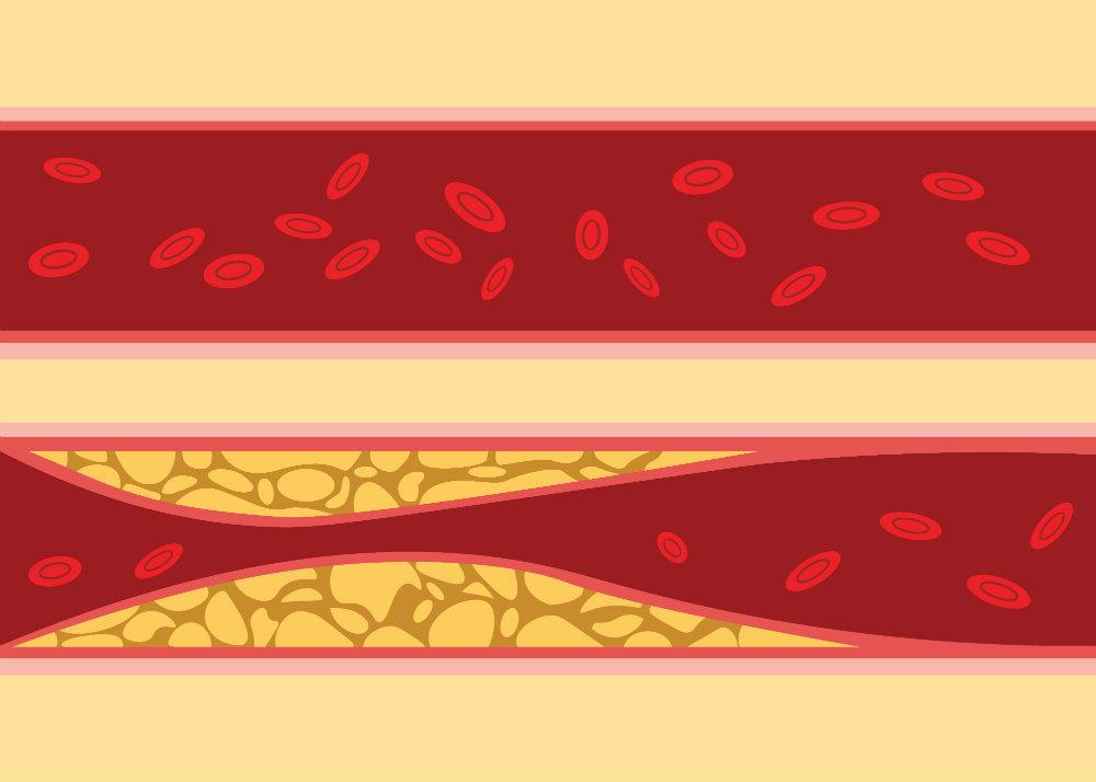 szénhidrátok és magas vérnyomás diuretikumok a magas vérnyomásról vélemények