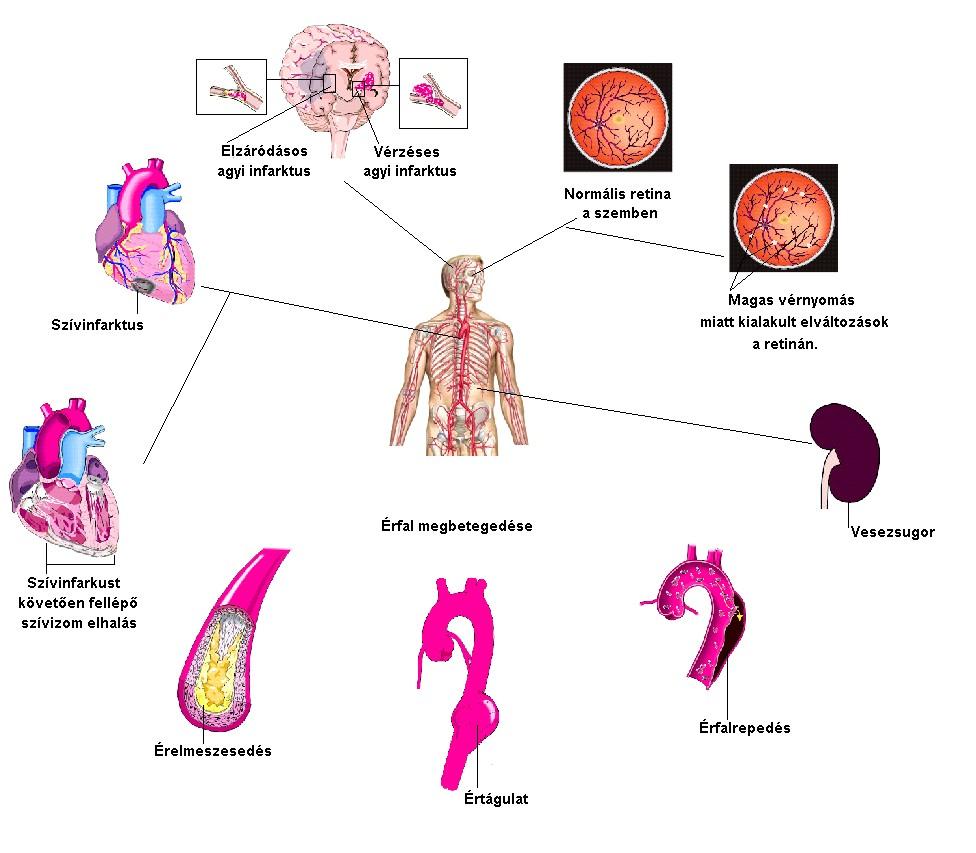 A vérnyomás természetes csökkentése – ikvahid.hu