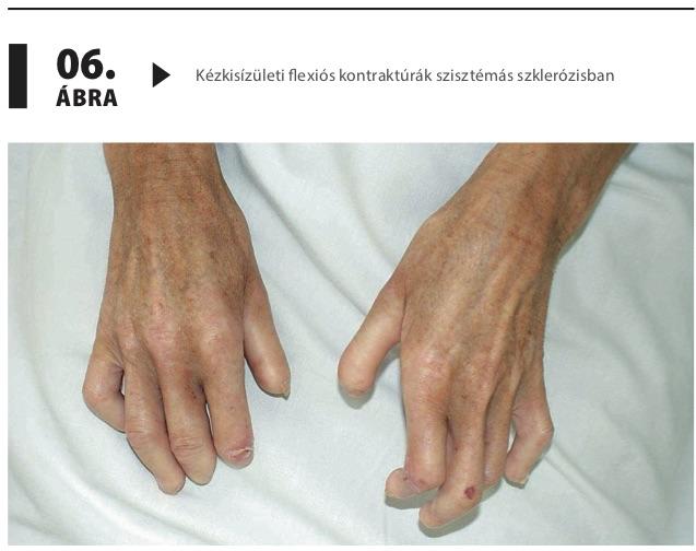 A magas vérnyomás   Sulinet Hírmagazin