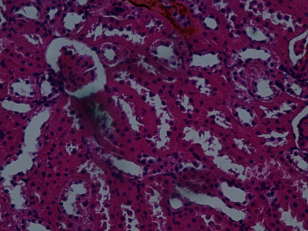 valerian hipertónia