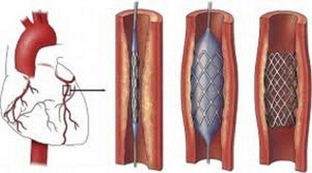 magas vérnyomás stentelés után rosszindulatú magas vérnyomás gyakran fordul elő