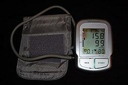 sinus tachycardia magas vérnyomással szívfájdalom magas vérnyomás