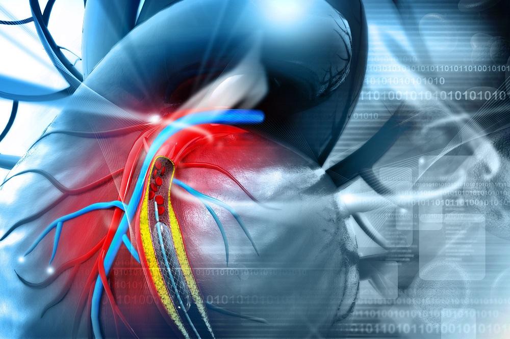 magas vérnyomás stentelés után magas vérnyomásban szenvedő donor lehetsz
