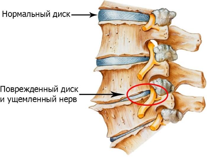 hipertónia komplex gyakorlása