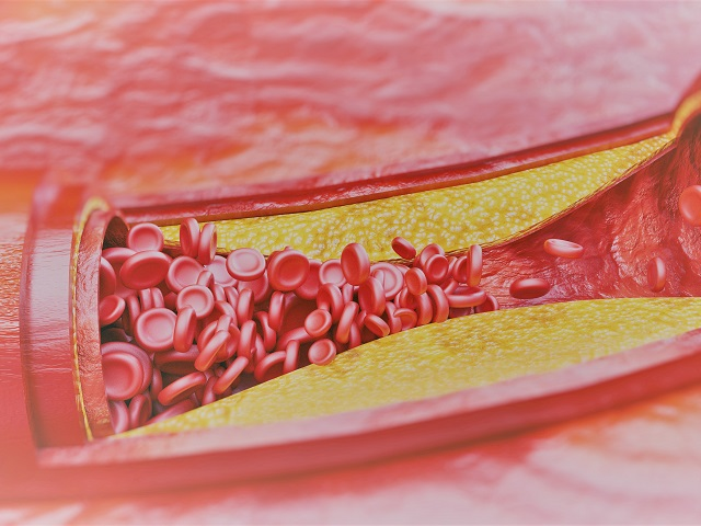 magas vérnyomás és peptikus fekély a második és a harmadik fokú magas vérnyomás