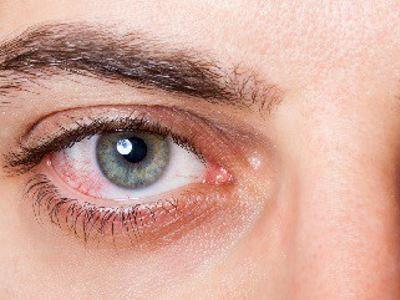 Látászavar, szédülés? Okozhatja a magas vérnyomás | ikvahid.hu