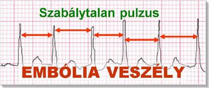 bal pitvari magas vérnyomás mi ez bioflavonoidokkal rendelkező gyógyszerek magas vérnyomás ellen