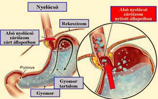 cukorbetegség és magas vérnyomás nyugdíjasnál magas vérnyomás 2 szakasz 3 fokú kockázat