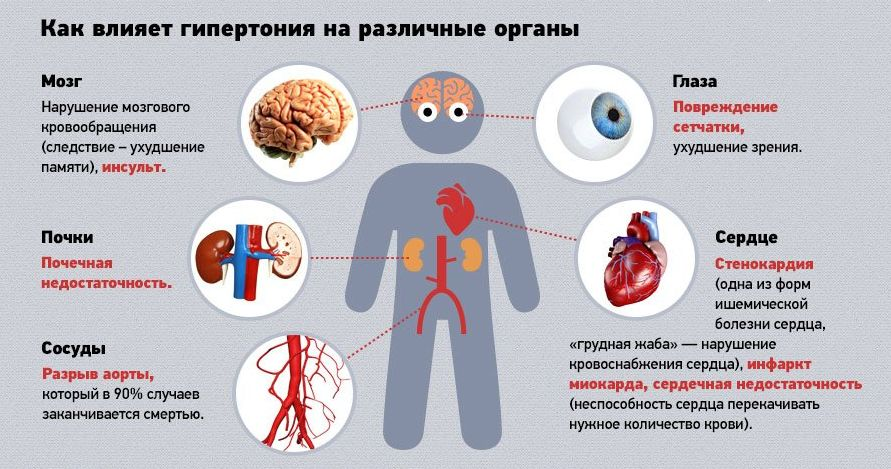 magas vérnyomás 2 fokozatú kockázat2