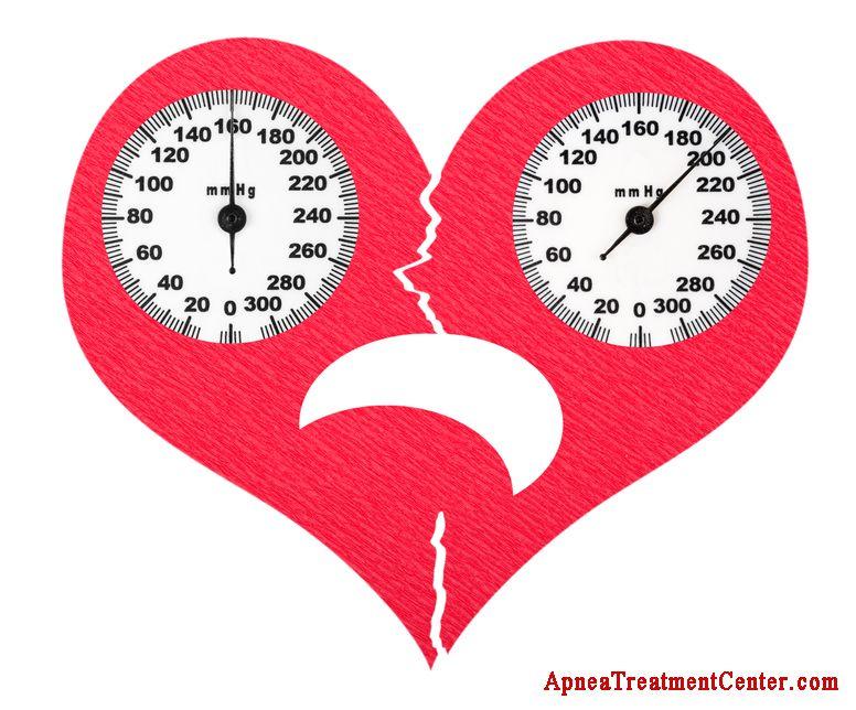 hogyan és hogyan kell kezelni a magas vérnyomást egy kórházban magas vérnyomás lehetséges gyógyszerek szedése magas vérnyomás ellen