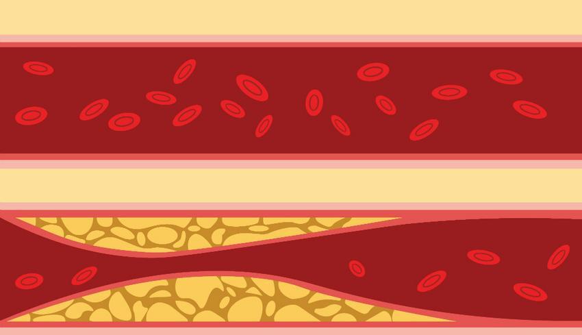 különbségek a magas vérnyomás és a vds között