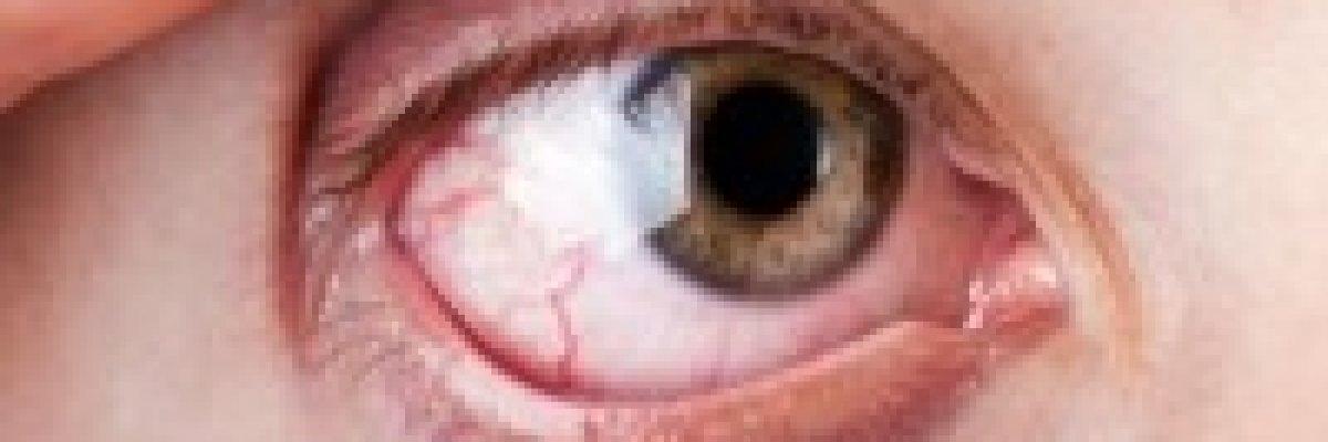 a szem magas vérnyomásának tünetei