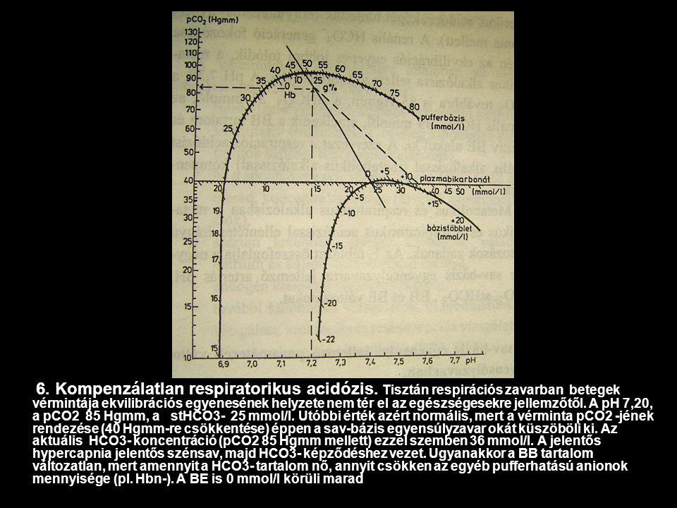 osteochondrosis, mint a hipertónia oka