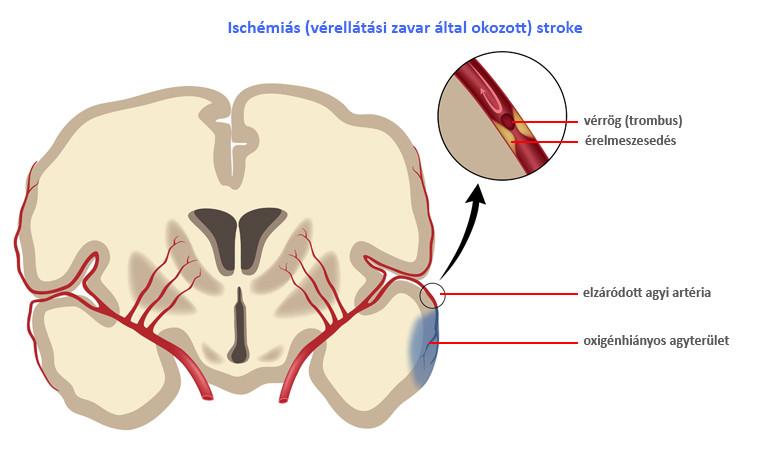 fokozatú magas vérnyomás amikor elhelyezik vérnyomás hirtelen megemelkedése