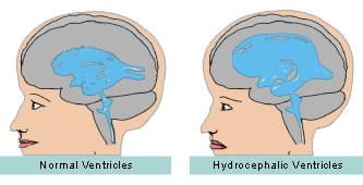magas vérnyomás 1 szakasz 1 szakasz 2 fok kockázat hipertóniával járó jogkategória