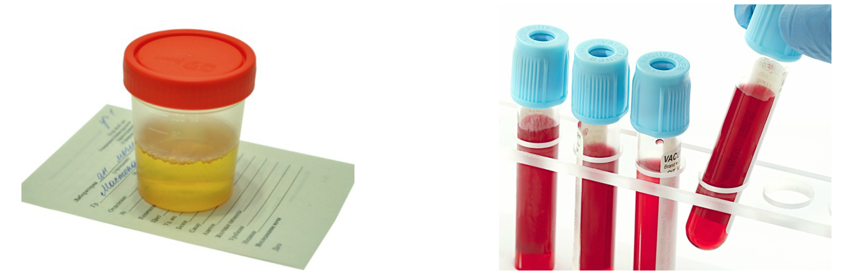 magas vérnyomás 2 fokozat 3 fok mit nem szabad enni vagy inni magas vérnyomás esetén