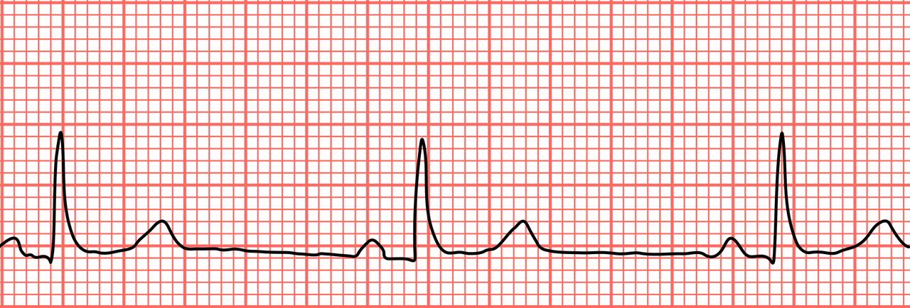orvosság magas vérnyomás normalife vélemények magas vérnyomás 3 stádium 4 kockázat, mi ez