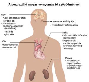 vegetatív dystonia hipertónia a magas vérnyomásban szenvedő magzat kockázata