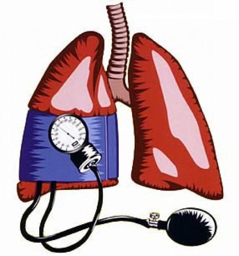 Új pulmonalis artériás hypertonia elleni gyógyszert engedélyezett az EMA | PHARMINDEX Online