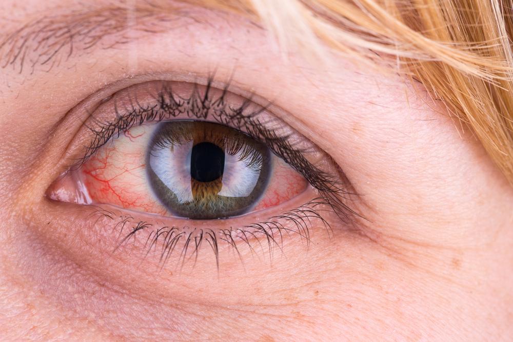 vörös szemek és magas vérnyomás
