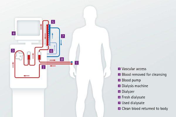 hemodialízis és magas vérnyomás